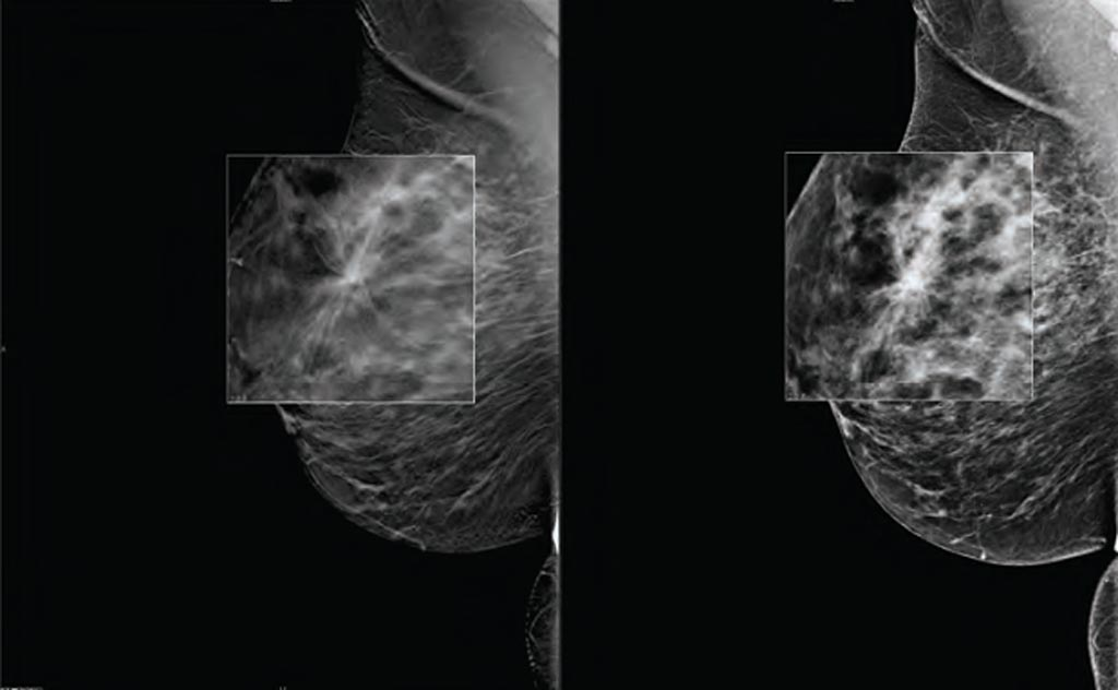 Image: A new study asserts DBT can increase breast cancer detection rates (Photo courtesy of Carestream Health).