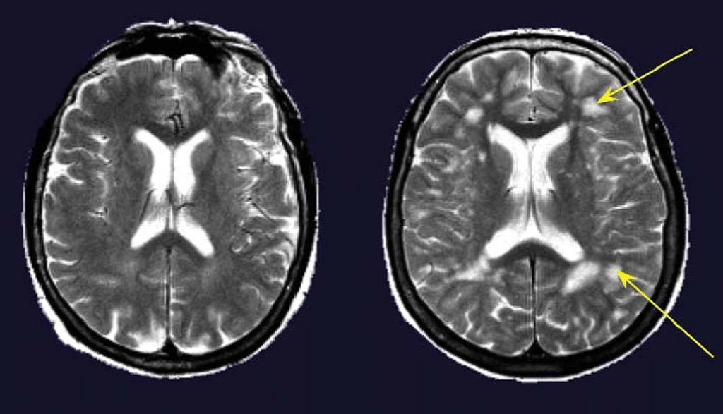 Image: Cerebral MRIs of two women 67 years of age without (left) and with (right) hypertension. The subject with hypertension had several deep and periventricular white matter lesions (arrows) (Photo courtesy of ResearchGate).