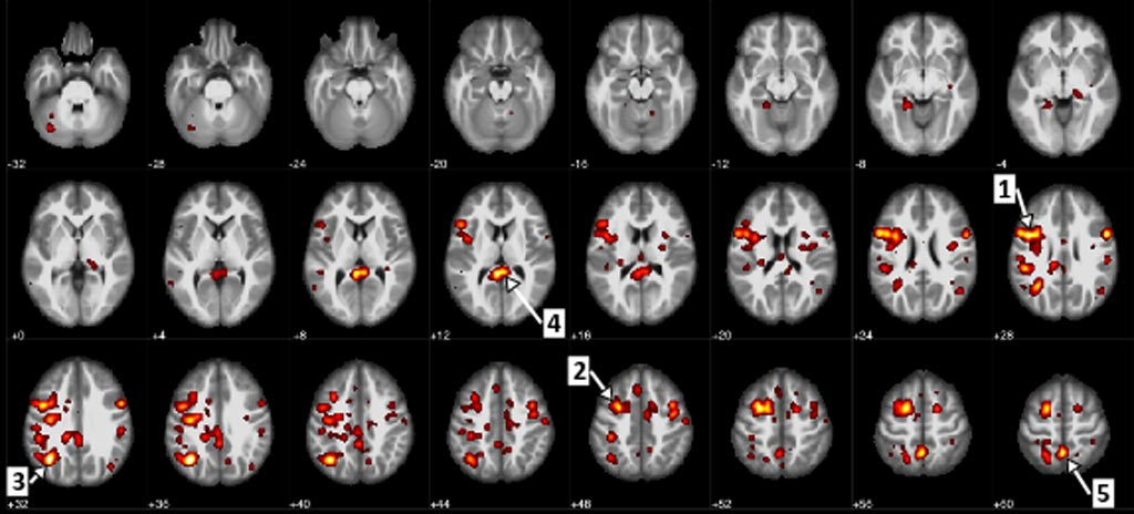Image: Regions of the brain that showed a statistically significant difference between patients with schizophrenia and patients without it (Photo courtesy of the University of Alberta).