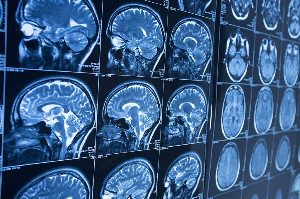 Image: Artificial intelligence (AI) is expected to transform diagnostic medical imaging as the industry grows beyond 2 billion by 2023 (Photo courtesy of iStock).