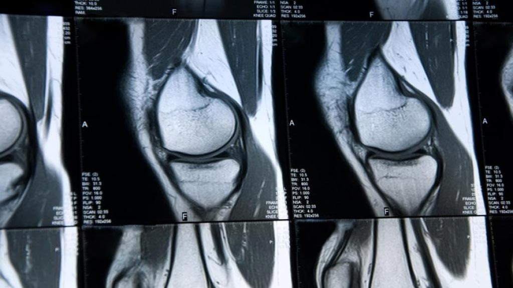 Image: Researchers have developed a deep learning–based system for cartilage lesion detection in knee MR images (Photo courtesy of Health Imaging).