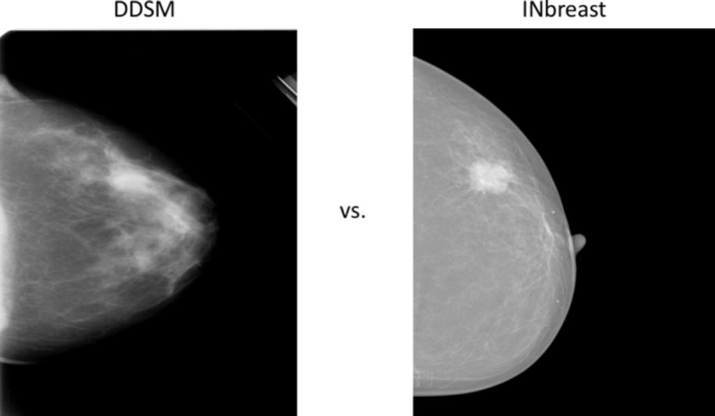 Image: Comparison of two example mammograms from DDSM and INbreast (Photo courtesy of ResearchGate).