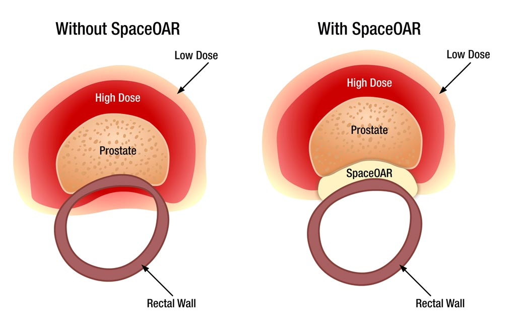 Image: The SpaceOAR system protects surrounding tissues during prostate RT (Photo courtesy of Augmenix).
