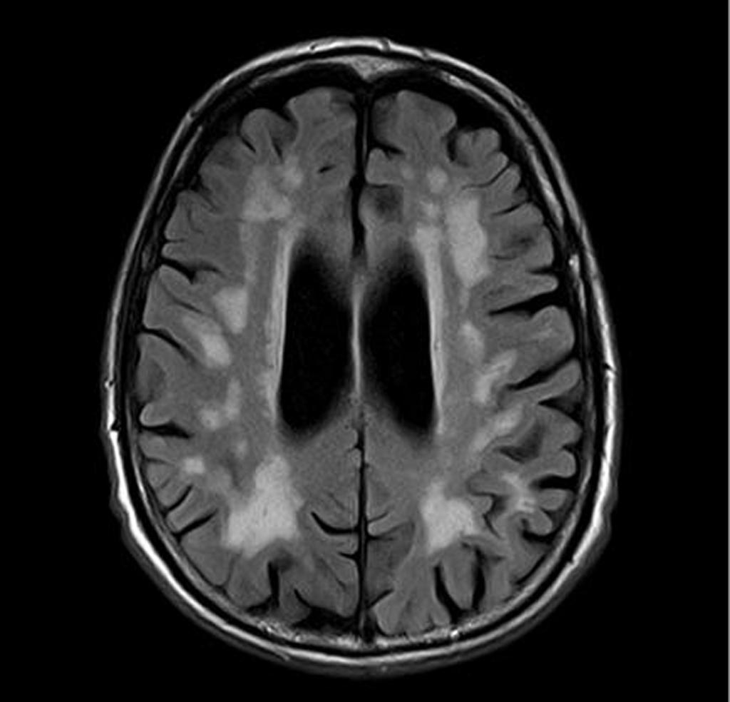 Image: A brain scan showing vascular dementia (Photo courtesy of Radiopaedia).