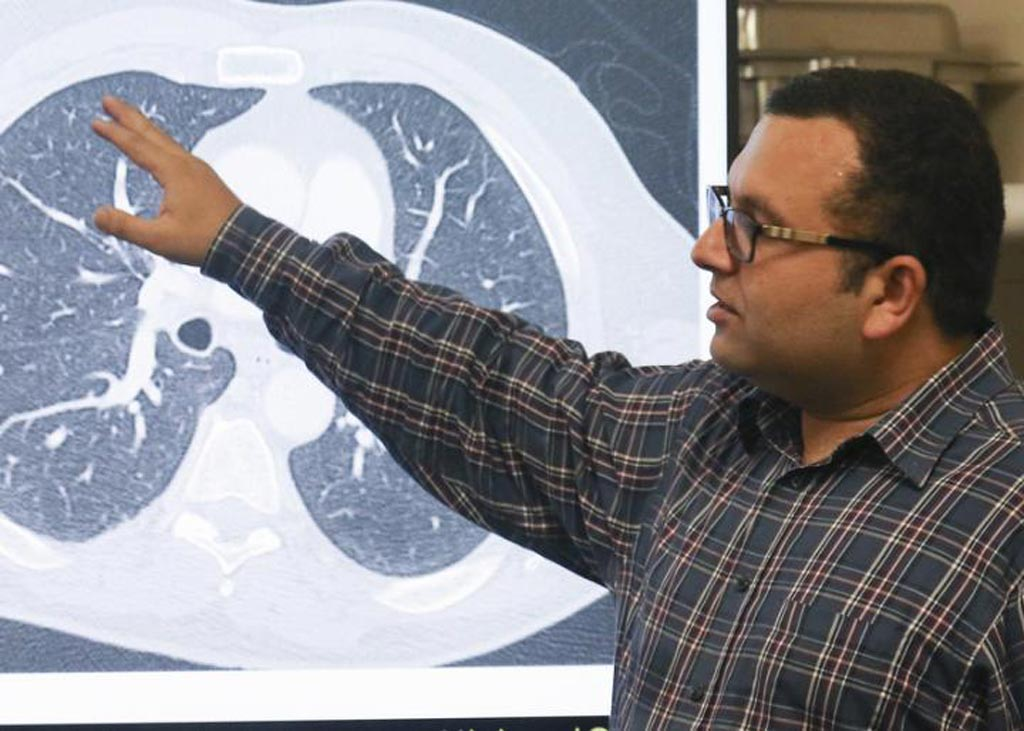 Image: Assistant Professor Ulas Bagci leads the group of engineers at the University of Central Florida that have taught a computer how to detect tiny specks of lung cancer in CT scans, which radiologists often have a difficult time identifying. The artificial intelligence system is about 95 percent accurate, compared to 65 percent when done by human eyes, the team said (Photo courtesy of the University of Central Florida, Karen Norum).