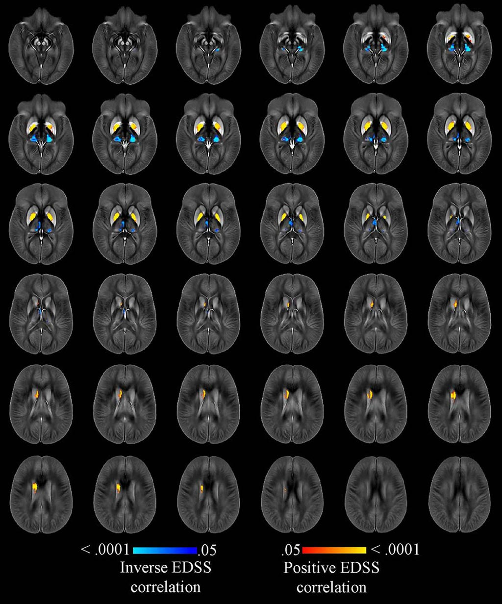 Image: A highly accurate MRI technique can monitor iron levels in the brains of MS patients (Photo courtesy of RSNA).
