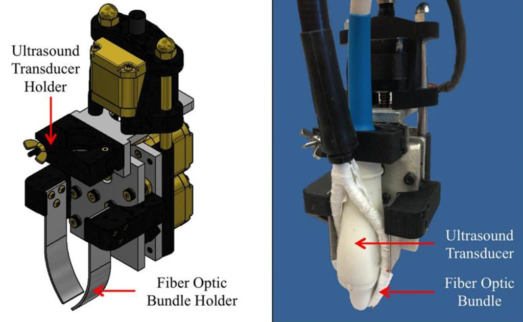 Image: A motorized photoacoustic probe holder helps improve light penetration depth and SNR (Photo courtesy of Purdue Research Foundation).