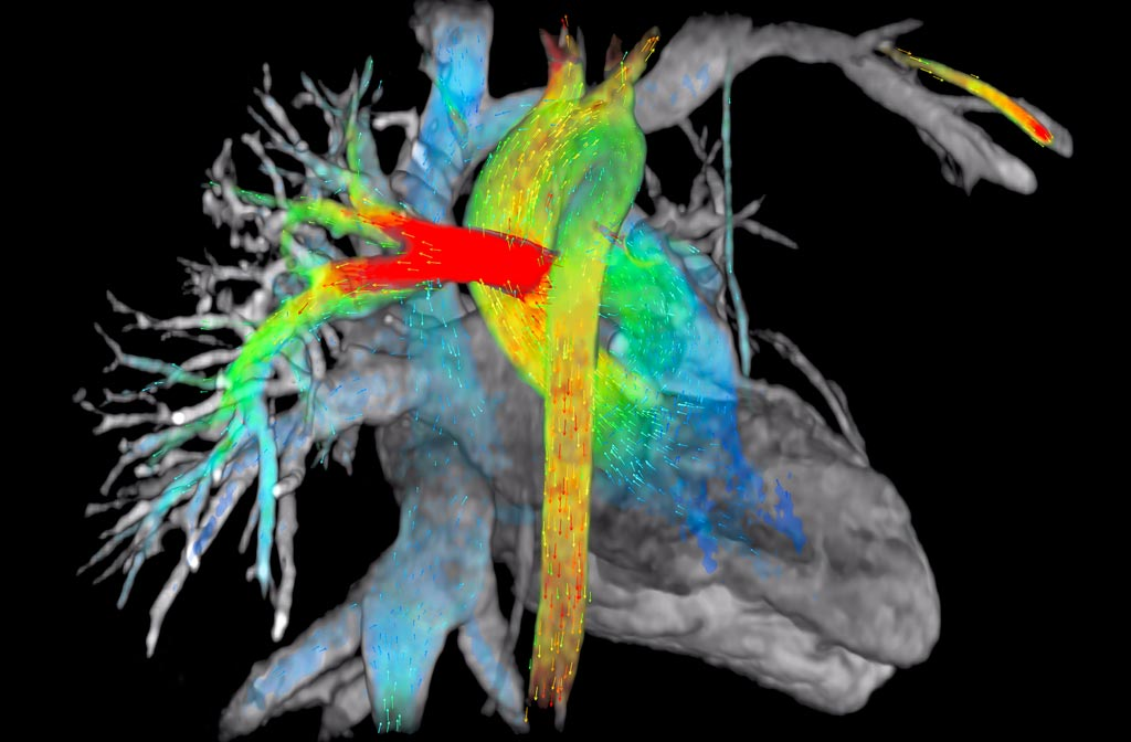 Image: A new study suggests that cardiac MRI can help detect lupus before symptoms appear (Photo courtesy of GE Healthcare).