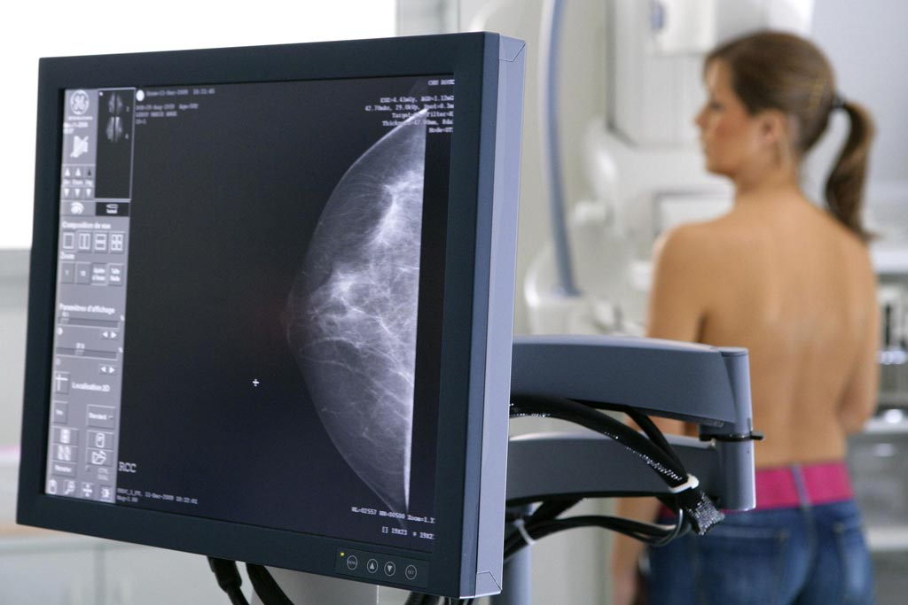 Image: The beneficial effect of breast cancer screening is no longer manifest, according to a new study (Photo courtesy of Getty Images).