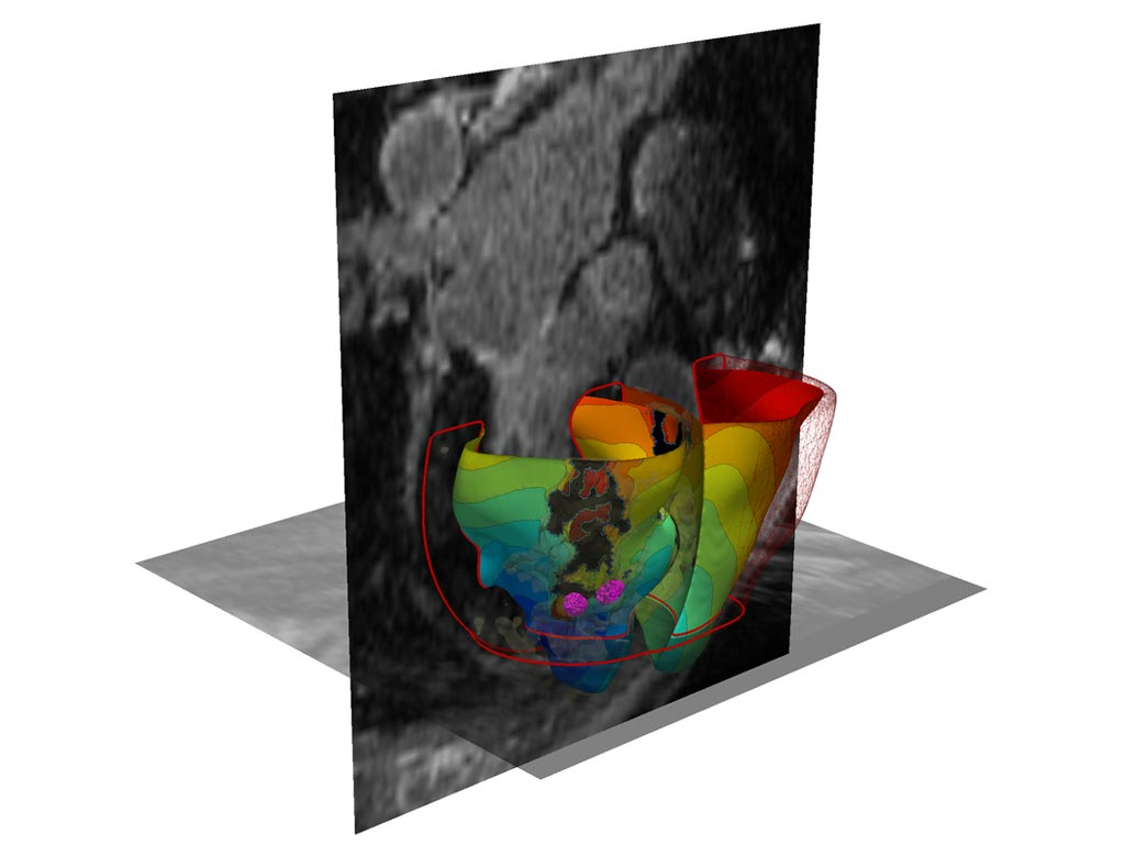 Image: A 3D simulated virtual heart (Photo courtesy of JHU).