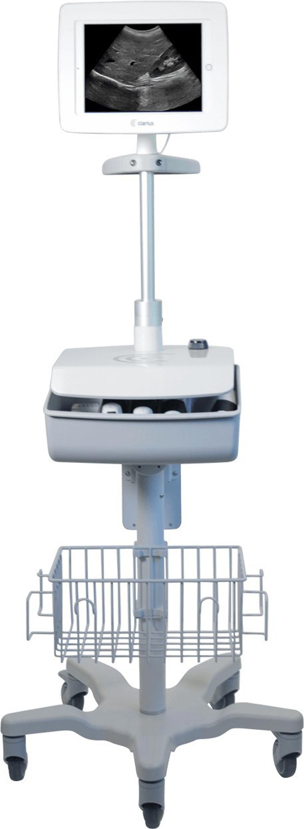 Image: A dedicated ultrasound cart holds multiple wireless scanners (Photo courtesy of Clarius).