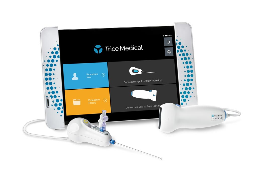 Image: The Trice dynamic imaging platform, featuring the mi-eye, mi-ultra, and mi-tablet (Photo courtesy of Trice Medical).