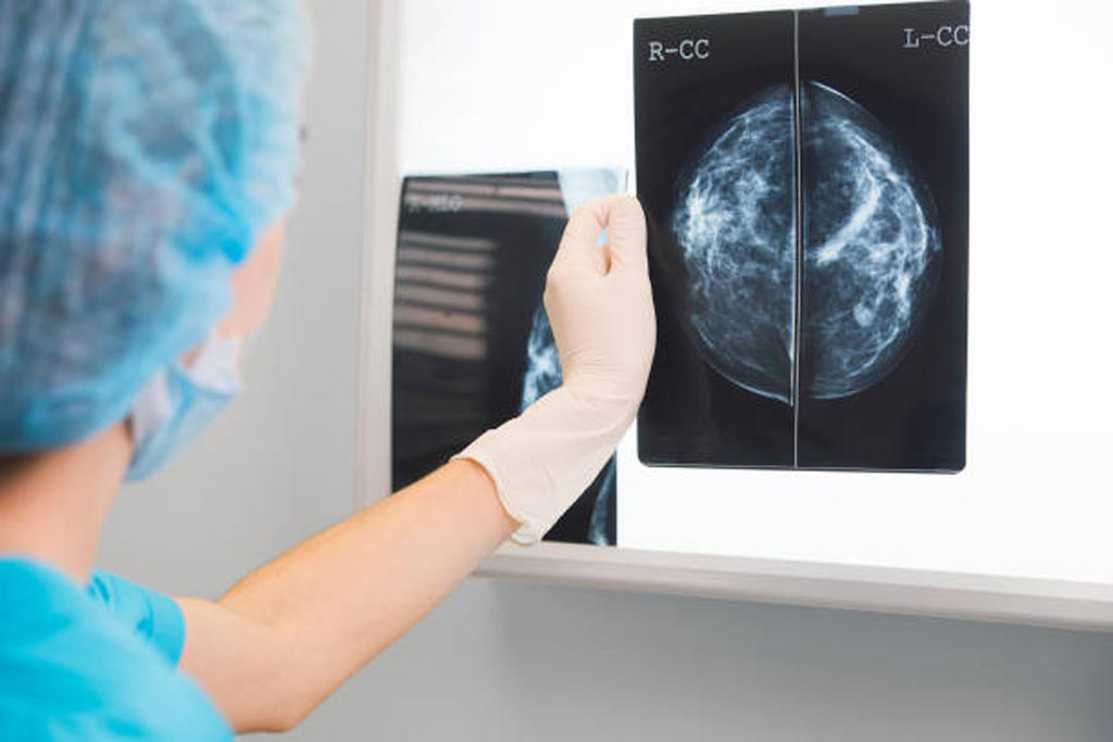 Image: A new study suggests breast imaging needs to be taken into consideration, even after mastectomy (Photo courtesy of iStock).