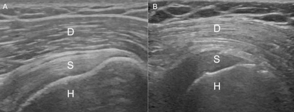 Image: A displays the normal gradient of the deltoid muscle; B shows reversal in T2D patient. D: Deltoid, S: Supraspinatus, H: Humerus (Photo courtesy of RSNA).