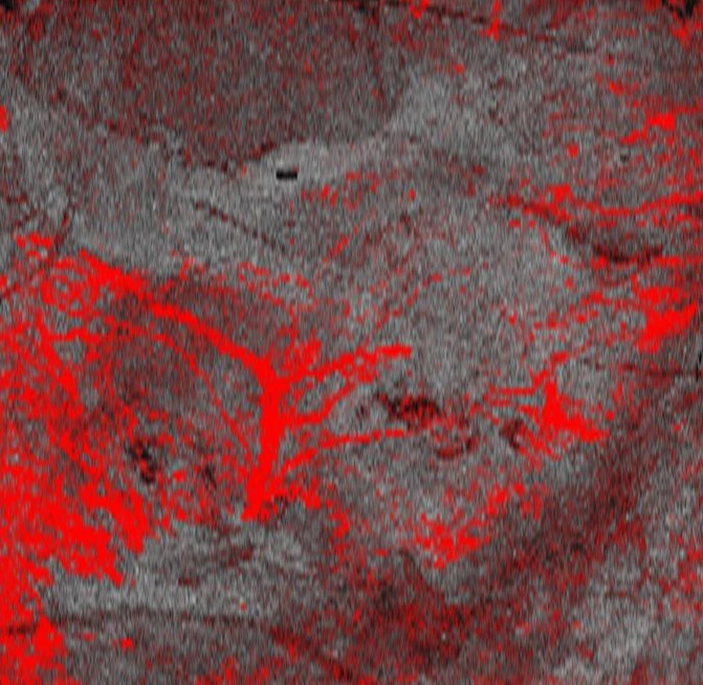 Image: Dynamic OCT image of advanced melanoma taken with the VivoSight scanner (Photo courtesy of Michelson Diagnostics).