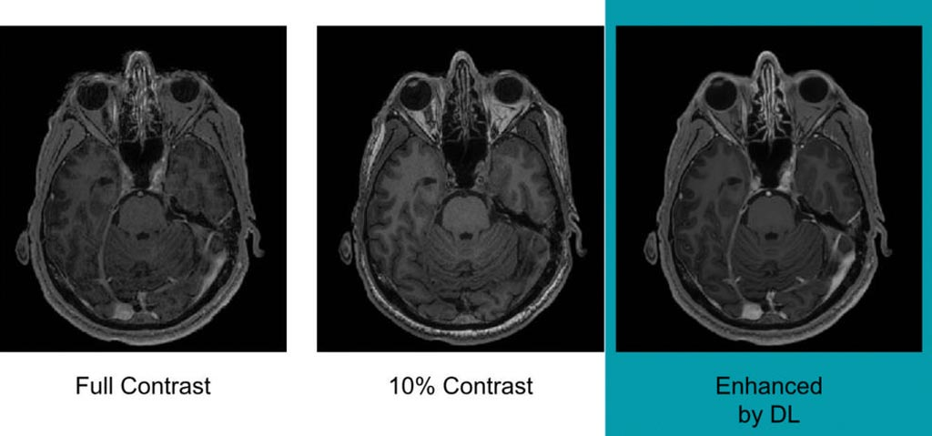 Image: Example of full-dose, 10 percent low-dose and algorithm-enhanced low-dose (Photo courtesy of RSNA).