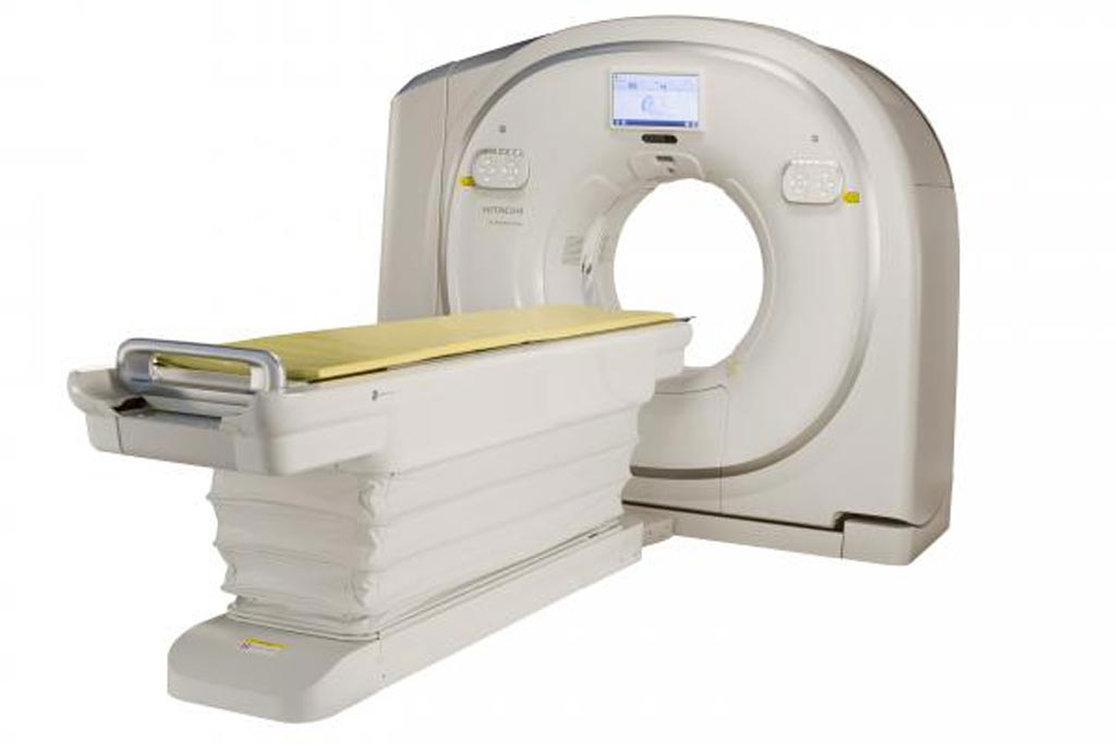 Image: The Scenaria View CT scanner offers an 80 cm wide bore for large patients (Photo courtesy of Hitachi).