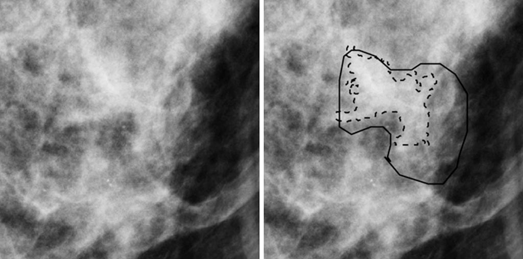 Image: A 50-year-old woman that has invasive cancer without (L) and with (R) radiologist and computer delineations (Photo courtesy Karen Drukker/ University of Chicago).