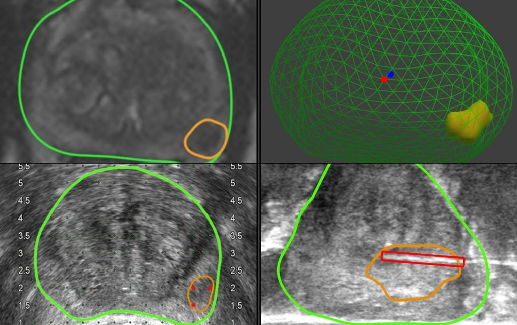 Image: Software that overlays tumor information from MRI scans onto ultrasound images can help guide surgeons conducting biopsies and improve prostate cancer detection (Photo courtesy of UCL).