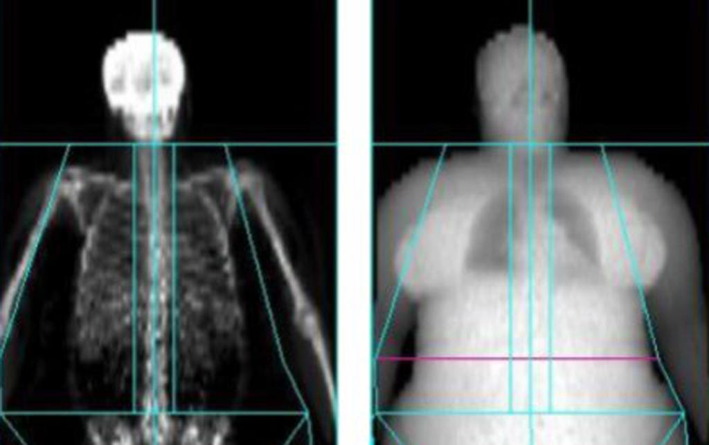 Image: A new study claims that obese patients are exposed to more radiation (Photo courtesy of University of Exeter).