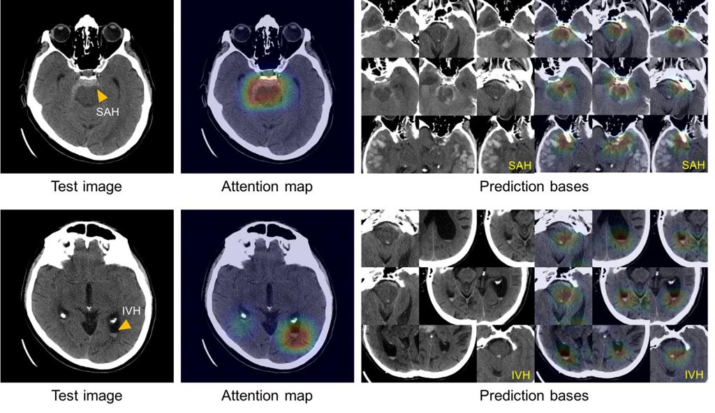 Image: These images show the system's ability to explain its diagnosis of subarachnoid (left above) and intraventricular (left below) hemorrhage by displaying images with similar appearances (right) from an atlas of images used to train the system (Photo courtesy of Hyunkwang Lee, Harvard School of Engineering and Applied Sciences, and Sehyo Yune, MD, Massachusetts General Hospital Department of Radiology).