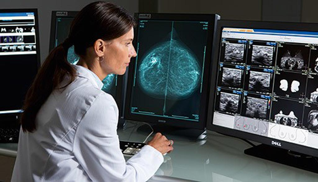 Image: The global medical imaging workstations market is projected to grow from USD 897 million to USD 1.38 billion by 2023 (Photo courtesy of Philips Healthcare).