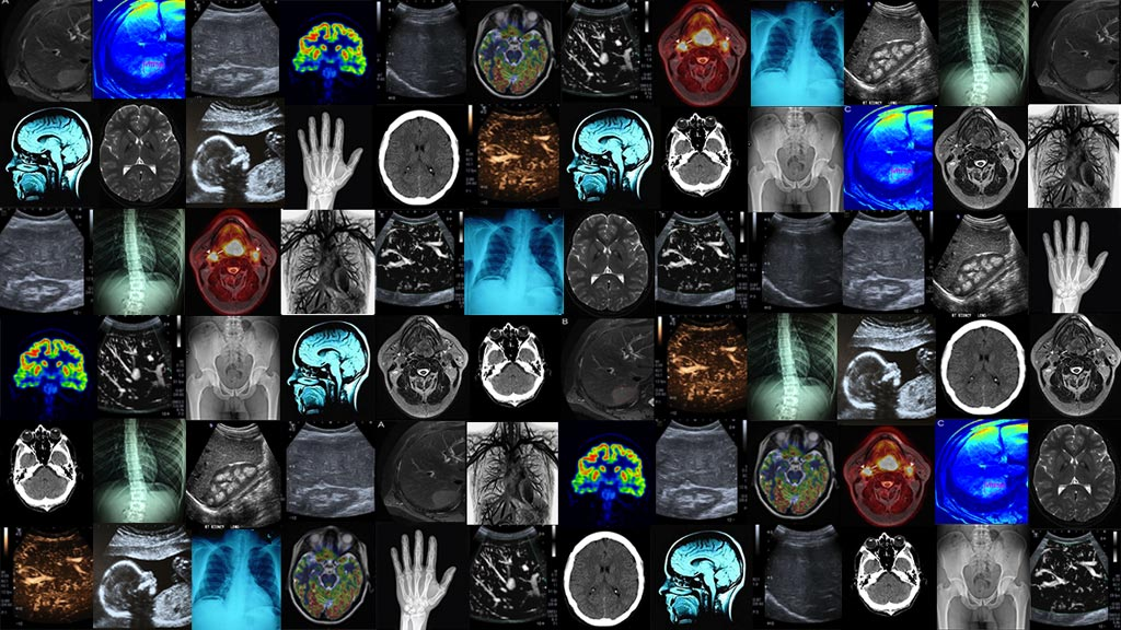 Image: A new study finds most imaging professionals regard ML as important to their industry for the future (Photo courtesy of Imperial College London).