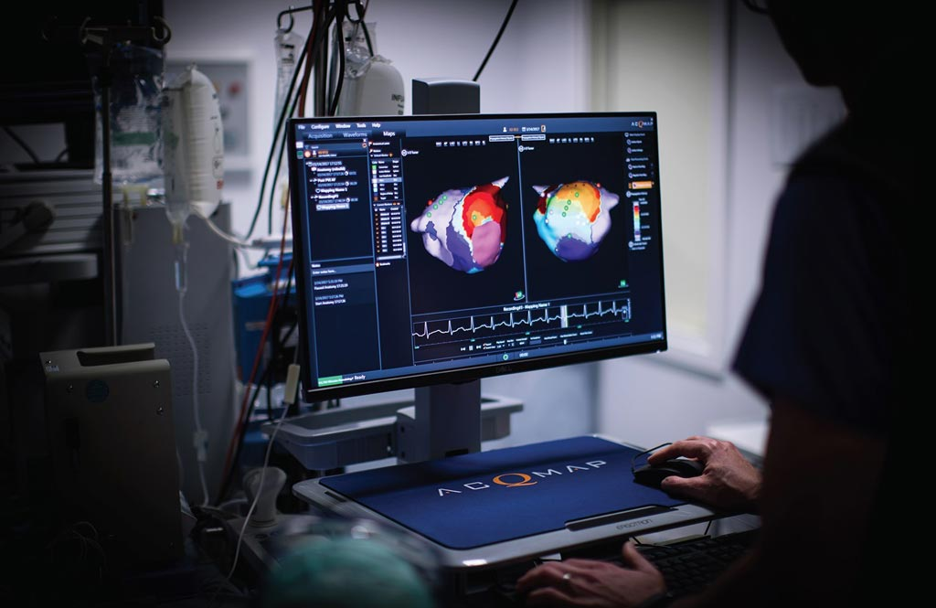 Image: AcQMap creates a full-chamber, 360-degree model of atrium (Photo courtesy of Acutus Medical).