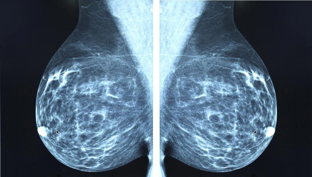 Image: The growth of the global breast imaging market is being driven mainly by technological advancements and rising incidence of breast cancer (Photo courtesy of iStock).