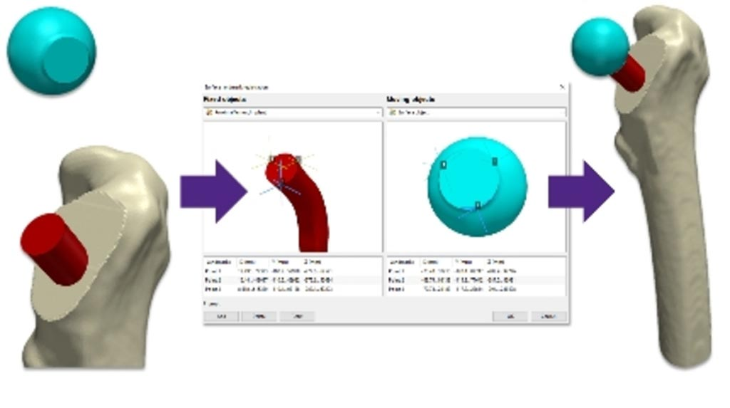 Image: Detail from the Simpleware ScanIP medical software tool (Photo courtesy of Synopsys).
