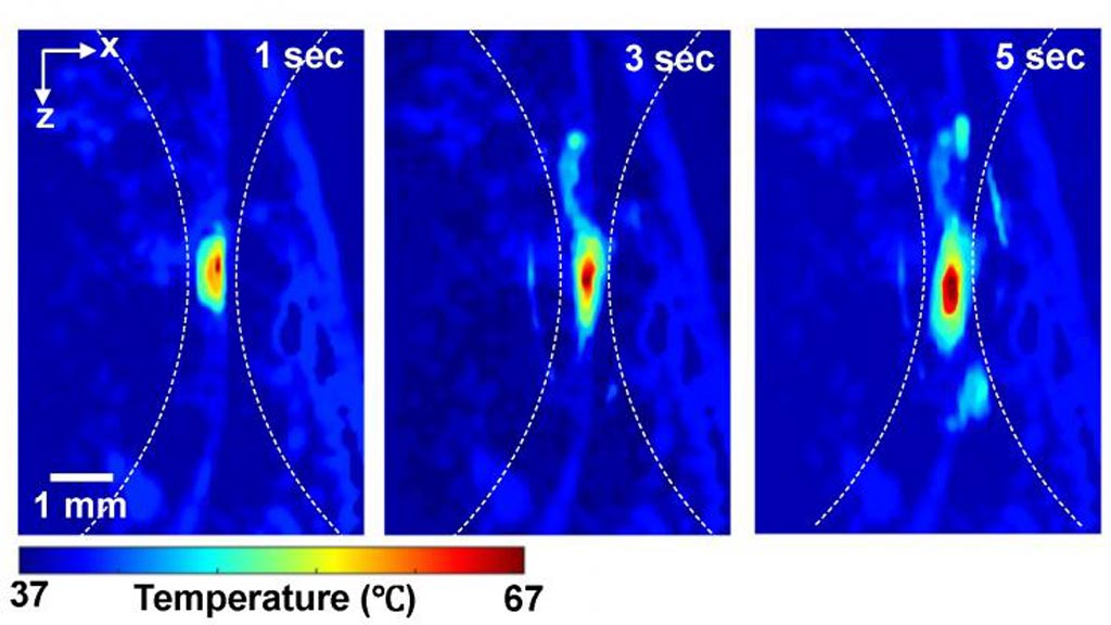 Image: Photoacoustic imaging shows absolute temperatures following high-intensity focused ultrasound (Photo courtesy of Duke University).