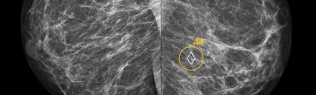 Image: The Transpara AI system automatically identifies soft-tissue and calcification lesions and combines the findings of all available views into a single cancer suspiciousness score (Photo courtesy of ScreenPoint Medical).