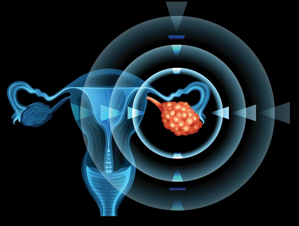 Image: The new software can predict the prognosis of patients with ovarian cancer more accurately than the current methods (Photo courtesy of Getty Images).