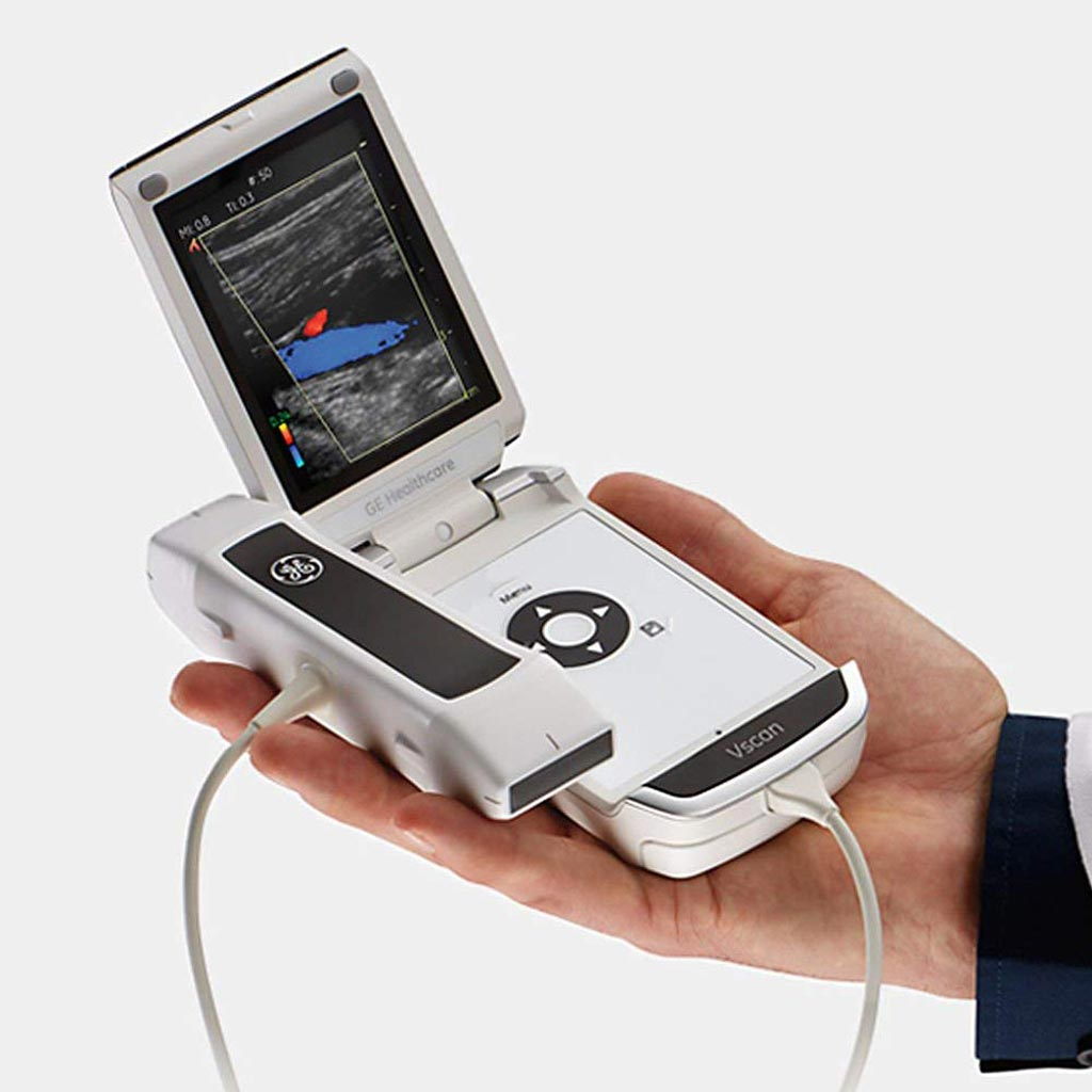 Image: The Vscan handheld ultrasound system (Photo courtesy of GE Healthcare).