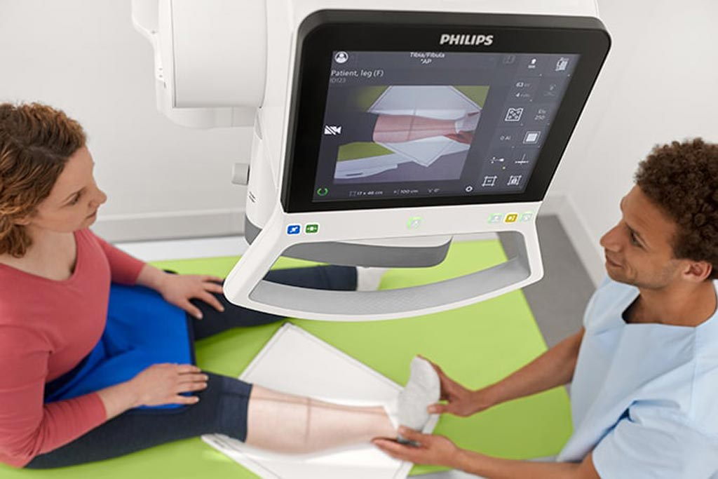 Image: A fibula exam being prepared on the DigitalDiagnost C90 DR System (Photo courtesy of Philips Healthcare).