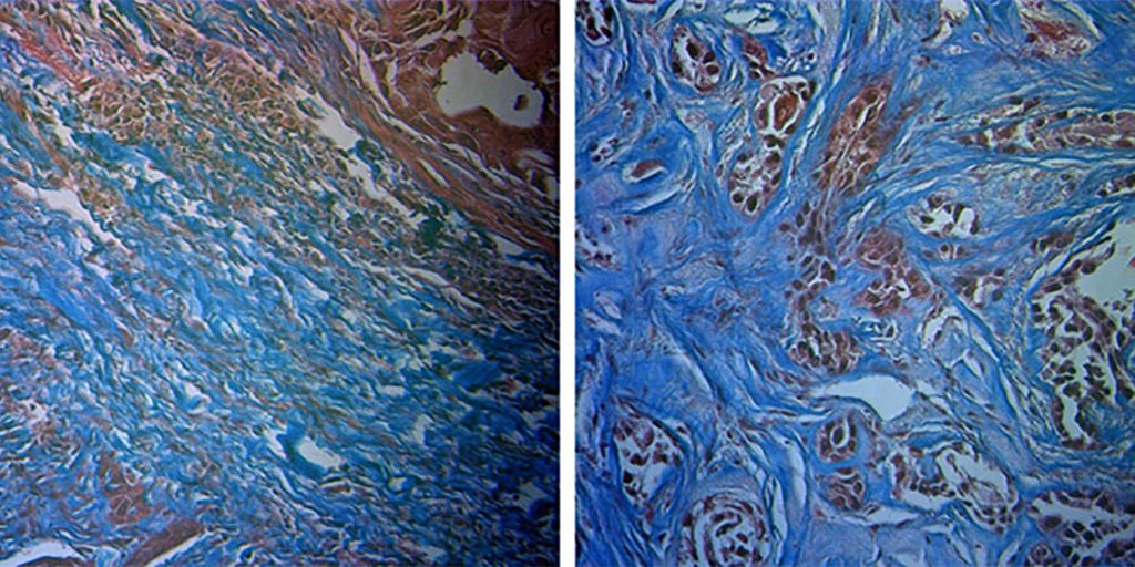 Image: Radiation-sensitive tumor (L), and radiation-resistant tumor (R). Sensitive tumors have more collagen (blue) (Photo courtesy of University of Arkansas).