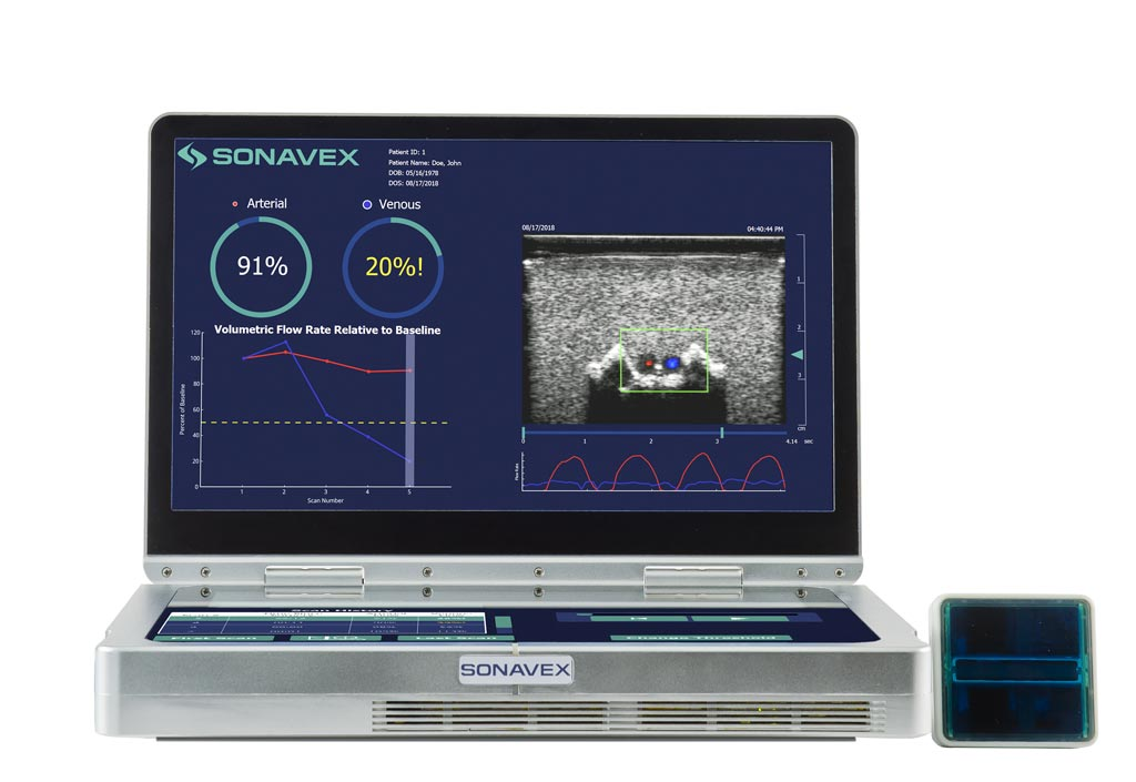 Image: The EchoSure portable ultrasound system detects blood clots (Photo courtesy of Sonavex).