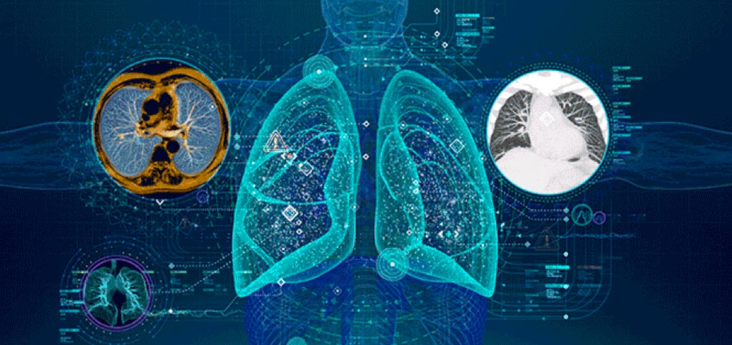 Image: New research looks to predict the treatment response in NSCLC with deep-learning technology (Photo courtesy of Getty Images).