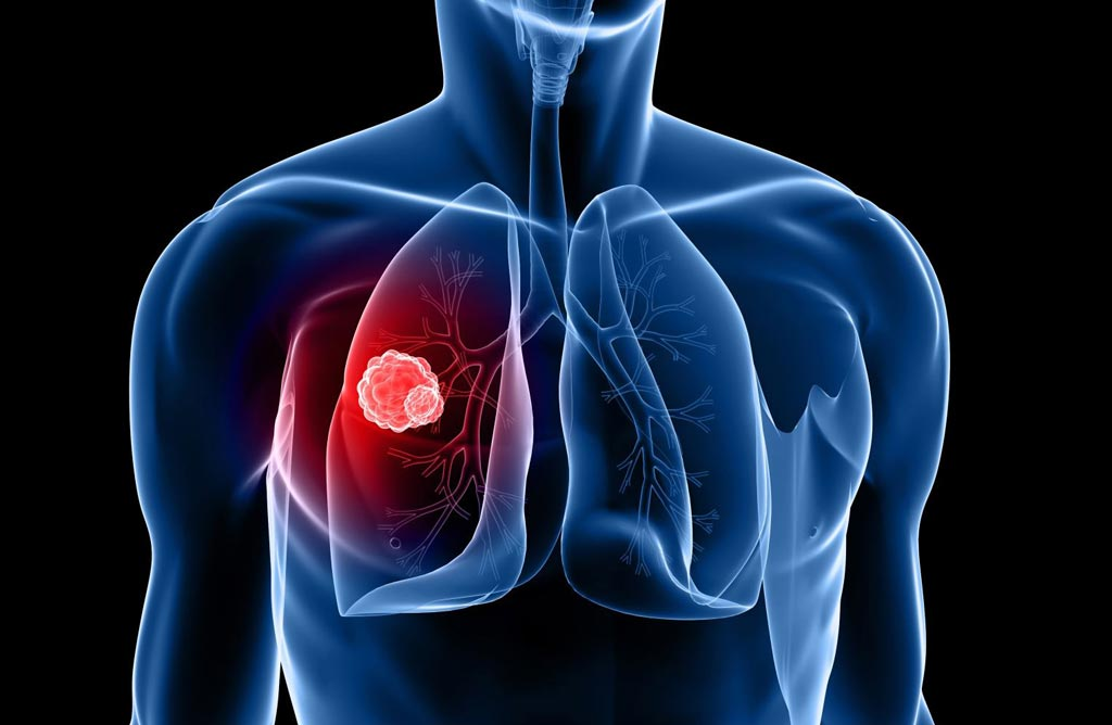Image: A new study claims CT screening reduces lung cancer mortality (Photo courtesy of Shutterstock).