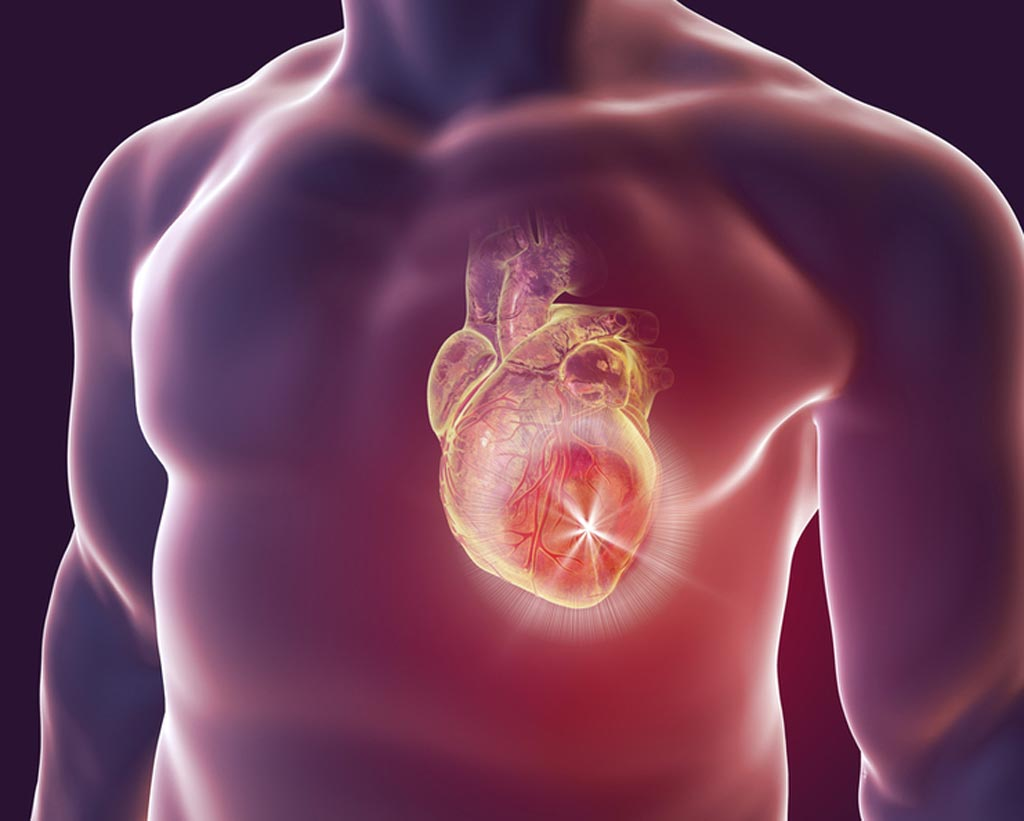 Image: A machine-learning algorithm trained to read imaging scans was more accurate at predicting heart attacks or death than expertly trained physicians (Photo courtesy of Shutterstock).