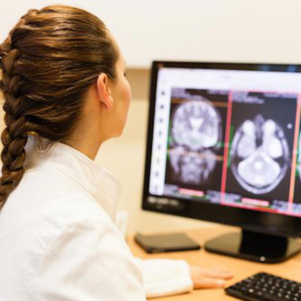 Image: New research shows machine learning can reduce the number of mammograms a radiologist needs to read (Photo courtesy of HealthManagement.org).
