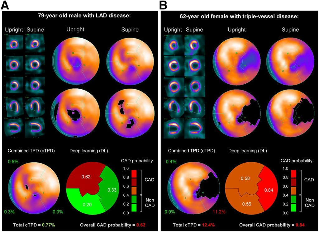 Image: A prediction of obstructive CAD from upright and supine stress MPI. Short/long axis views, polar maps depicting normalized radiotracer count distribution and perfusion defects (top), and predictions by cTPD and DL (bottom) are shown for two patients with obstructive CAD (Photo courtesy of SNMMI).