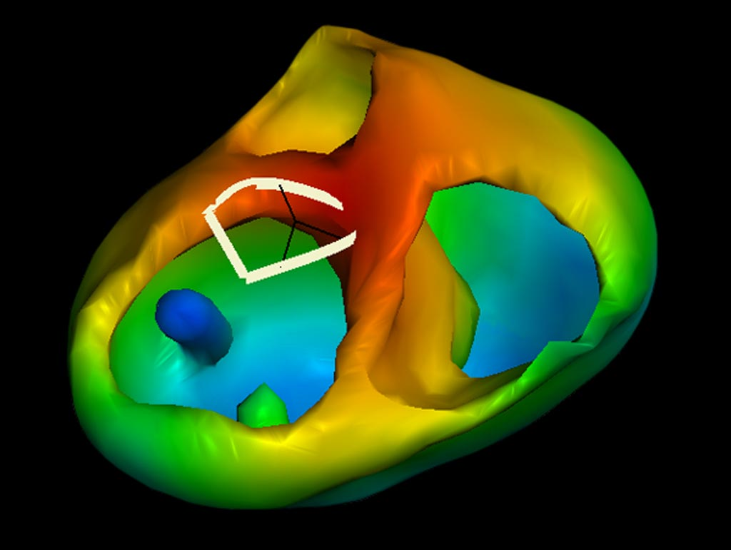 Image: A three-dimensional cardiac model generated from a photograph, ECG selection, and imaging scan (Photo courtesy of Catheter Precision).