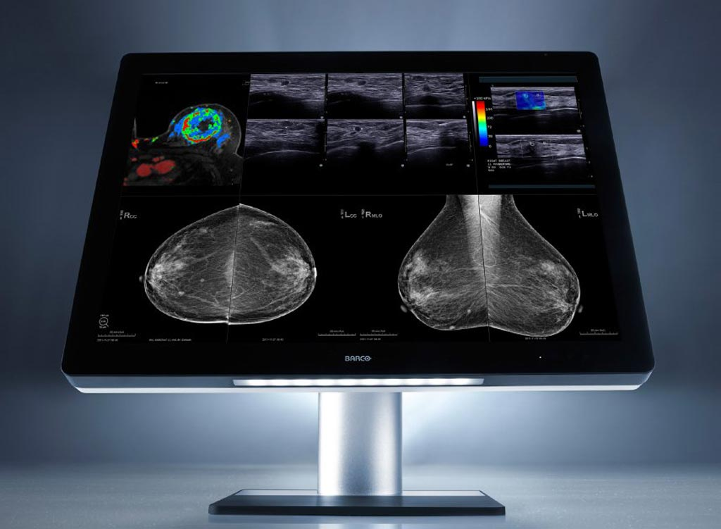 Image: An advanced imaging solution can facilitate remote radilogy reading (Photo courtesy of Barco).