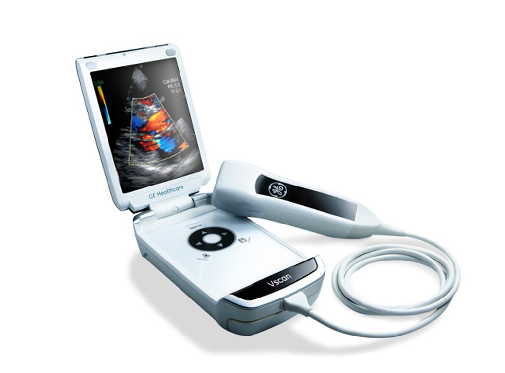 Image: The Vscan portable ultrasound (Photo courtesy of GE Healthcare).