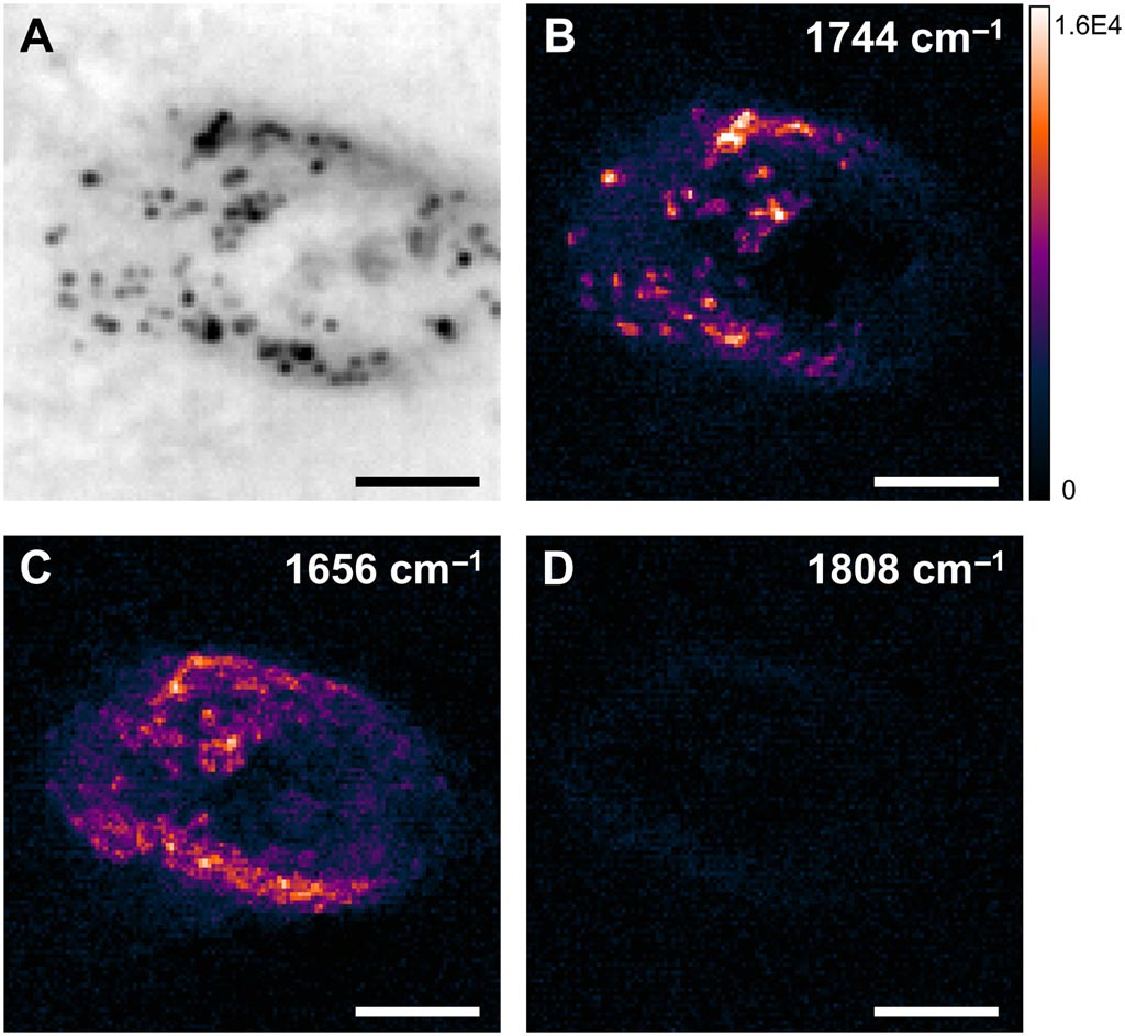 Image: WPS imaging of an ovarian cancer cell (a), lipids (b), proteins (c), and off-resonance (d) respectively (Photo courtesy of Ji-Xin Cheng et al).