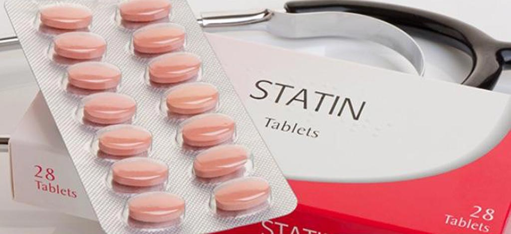 Image: A new study shows statins reduce stroke risk following irradiation therapy (Photo courtesy of Getty Images).