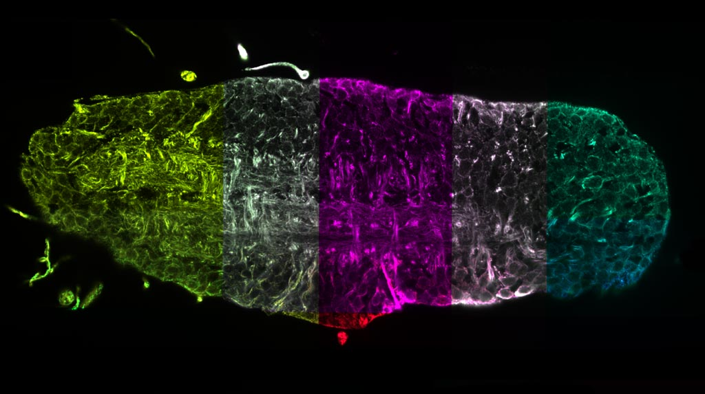 Image: A virtual cross-section of the complete nervous system of a fruit fly larva (Photo courtesy of Janelia/ MDC).