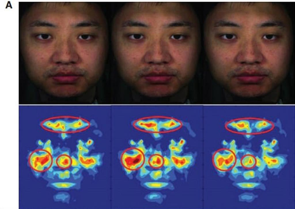 Image: A new study claims that specific areas of the human face can be used to optically measure BP (Photo courtesy of Kang Lee/ UT).
