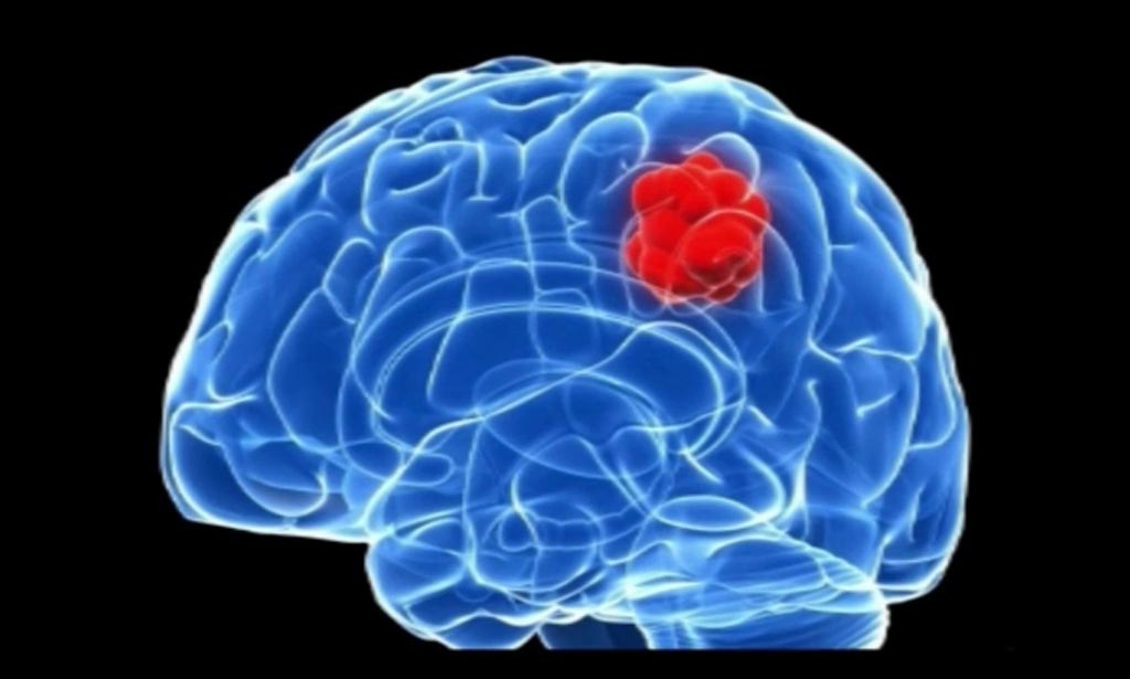Image: New research suggests that spatial models can help improve RT glioblastoma treatments (Photo courtesy of Getty Images).